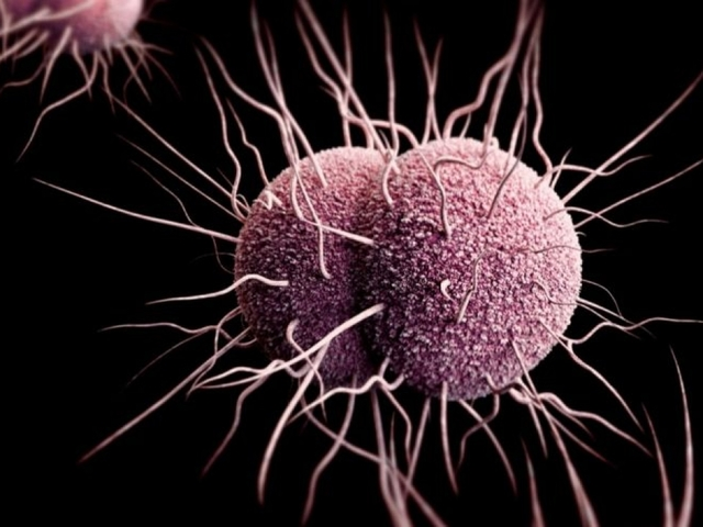 New strain of 'super gonorrhea' could be untreatable