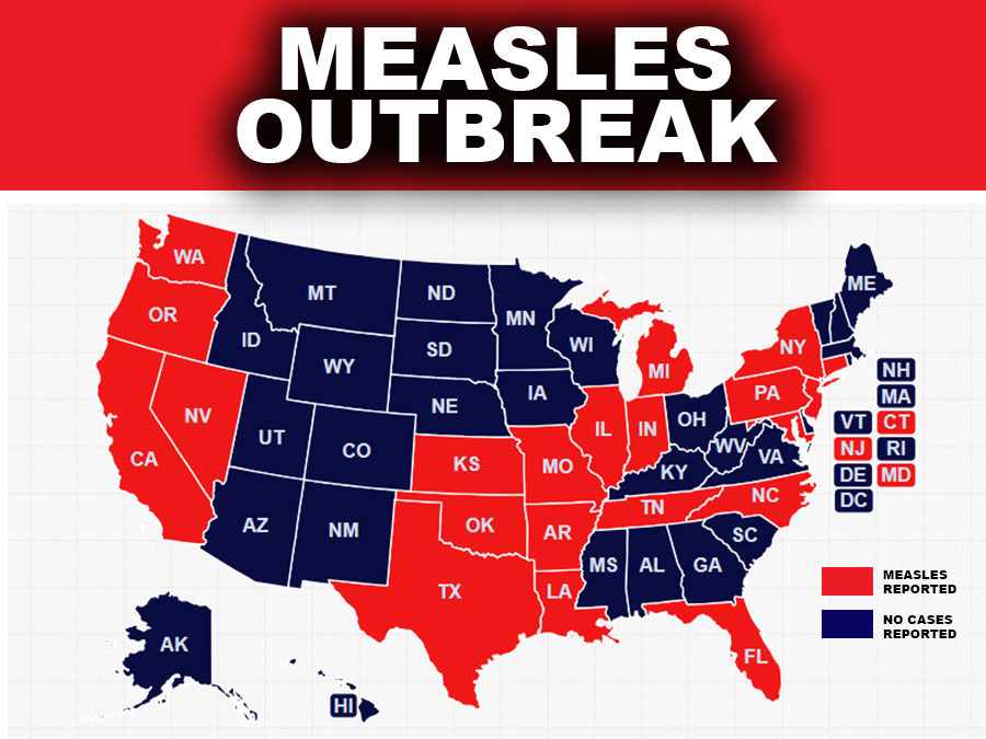 measles reported in 21 states  according to cdc